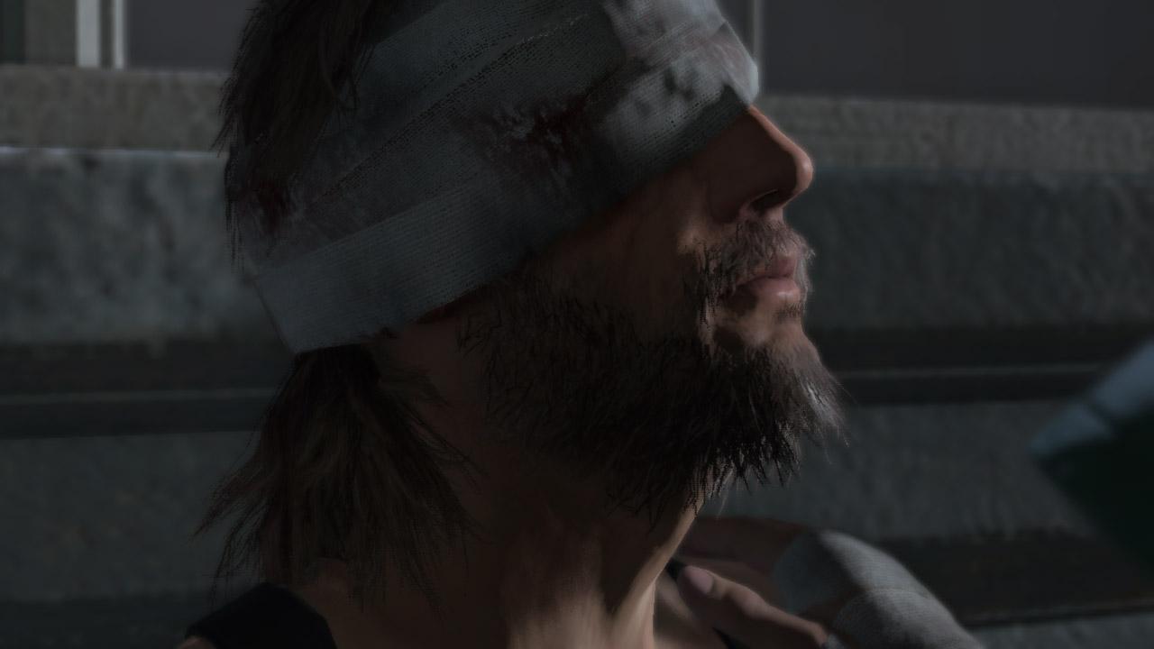 Il y a les réveils qui piquent, et il y a le réveil de Big Boss dans Metal Gear Solid V : The Phantom Pain.